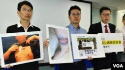 香港民權觀察、國際特赦組織香港分會代表,展示6-12警方清場行動中受傷的示威者傷勢照片,證警方使用過度武力。(美國之音湯惠芸攝)