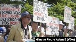 Marche de sensibilisation sur l'albinisme organisée au Bénin le 13 juin 2018.