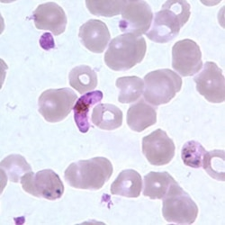 The Plasmodium parasite, center, among blood cells