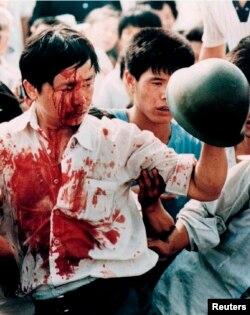 Tyananmen maydonida dastlabki jarohatlar. Pekin, 4-iyun, 1989.