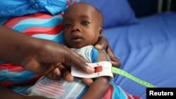 FILE - A muac tape used to screen malnutrition in children at the stabilization ward in Molai General Hospital Maiduguri, Nigeria Nov. 30, 2016.