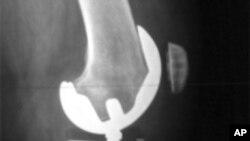 X光照射显示人工的膝关节