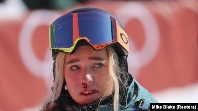 Сноубордистка Емілі Артур після невдалого спуску на сноуборді. 2e62e5b9189c2