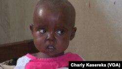 Un enfant malnutri à l'hôpital de référence de Minova, Nord-Kivu, RDC, 13 février 2018. (VOA/Charly Kasereka)