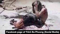Ông Bùi Hữu Tuân tự thiêu bất thành hôm 2/7 tại Hà Nội trong quá trình kêu oan về một vụ án đất đai
