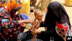 بسیاری در یمن در اثر جنگ گرسنه هستند.