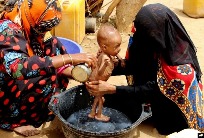 Seorang bayi yang menderita gizi buruk parah sedang dimandikan di Aslam, Hajjah, Yaman, 25 Agustus 2018.