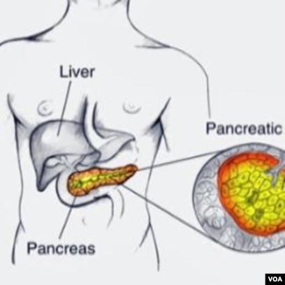 Kanker Pankreas Penyebab Utama Kematian Ke 4 Akibat Kanker Di As