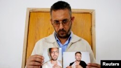 Mohammed Ghannam shows photographs depicting what he says are injuries sustained when he was detained by Palestinian security forces, at his home in the West Bank village of Dura, near Hebron, May 12, 2013.