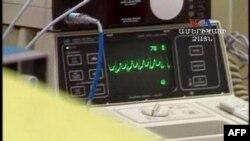Mlađe žene često su primljene u bolnicu bez klasičnih simptoma srčanog udara