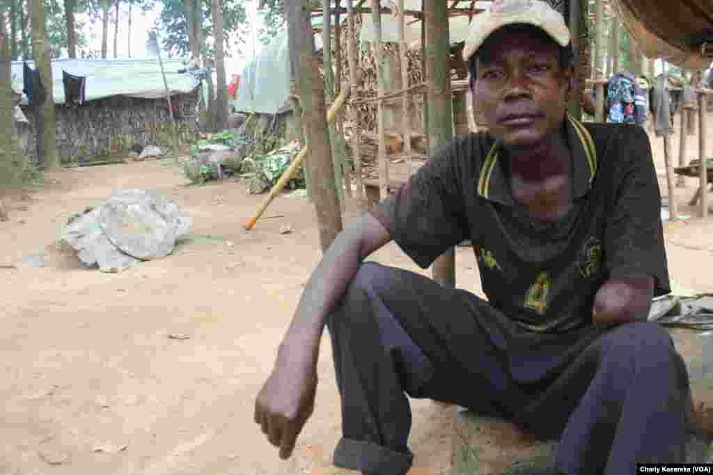 Avec son bras gauche coupé, ce déplacé vit avec sa famille dans un des camps à Oicha, Beni, 28 octobre 2015 (Charly Kasereka/VOA).