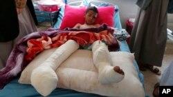 Dečak, povređen u jučerašnjem vazdušnom napadu u Sadi, leži u bolnici (Foto: AP/Kareem al-Mrrany)