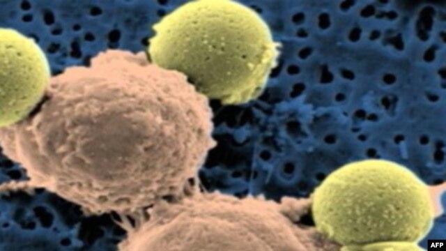 სწორ კვებას შეუძლია სიმსივნე თავიდან აგვაცილოს