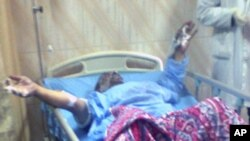 Restaurant owner Abdouh Abdel Moneim, 49, lies in a hospital bed after he had set himself on fire near the parliament in Cairo, 17 Jan 2011