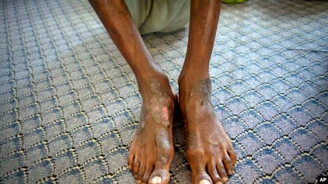 A man suspected of being a Gadhafi loyalist shows wounds on his feet at a detention facility in Misrata, Libya, Sept. 22, 2011.