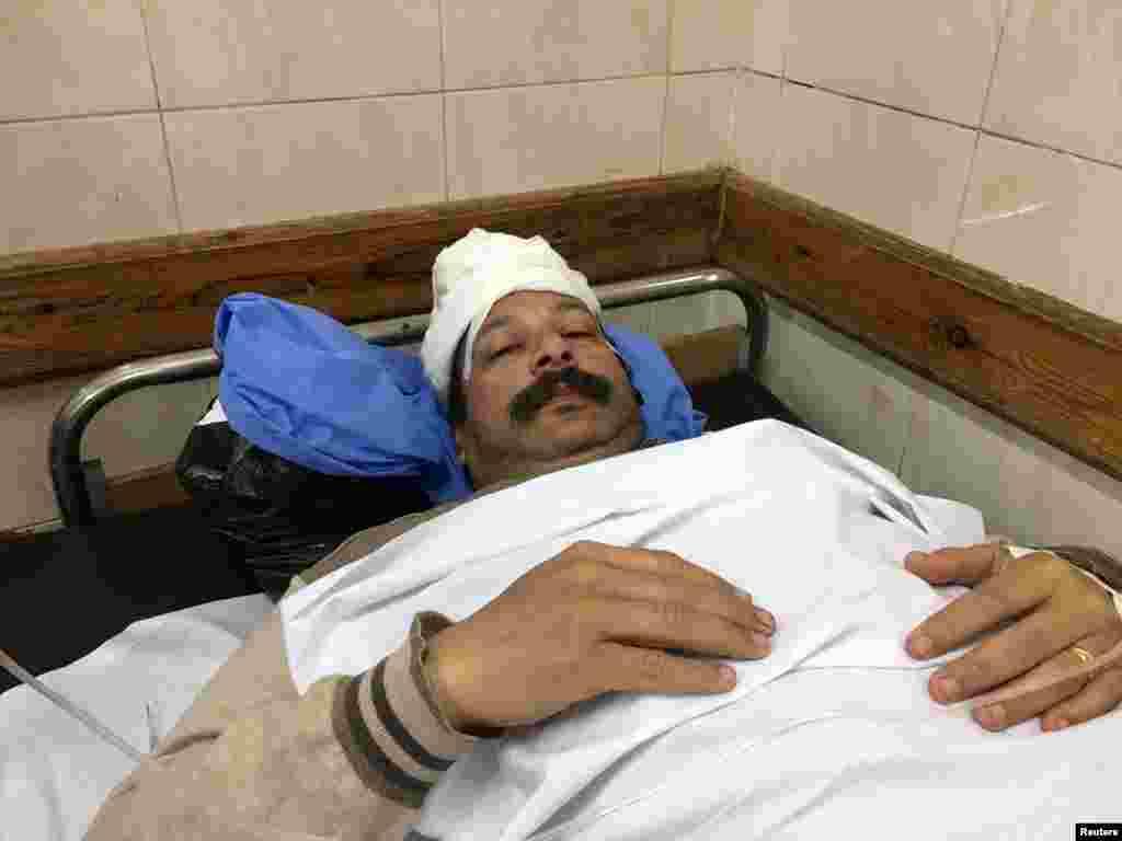 Emil Edward Salib ficou ferido na sequência da explosão na igreja cristã Copta que aconteceu no Domingo em Tanta, Egipto. Abril 9, 2017