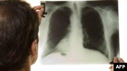 Tüberküloz Hastaları Akciğer Kanseri Riski Taşıyor