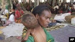 Wata mace daga kudancin Somaliya take rike da danta mai fama da 'yunwar abinci mai gina jiki.