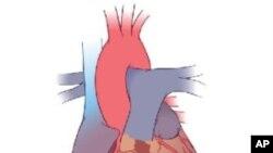 Srce na popravak?