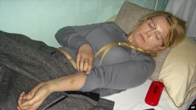 Former Ukrainian Prime Minister Yulia Tymoshenko shows what she says is an injury in the Kachanivska prison in Kharkiv, Ukraine, in this undated handout picture received April 27, 2012.