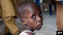 나이지리아 북부 보르노주의 영양실조 어린이가 유엔아동기금(UNICEF) 시설에서 보호받고있다. (자료사진)