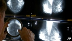 FILE - A radiologist uses a magnifying glass to check mammograms for breast cancer in Los Angeles, California, May 6, 2010.