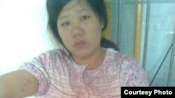 潘春烟被打引产针后身上有反抗造成的伤痕 (Xu Can blog)