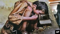 A photo showing a North Korean child suffering from famine. (File)