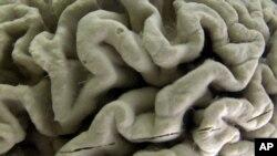 Una sección de un cerebro con Alzheimer en exhibición en el museo de Neuroanatomía de la Universidad de Buffalo, Nueva York.