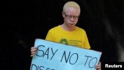 """Un Albinos porte une pancarte """"Dites non à la discrimination"""" lors d'une campagne de sensibilisation à Harare, Zimbabwe, le 18 juin 2016."""