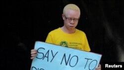 Em Nampula, albinos vivem com medo