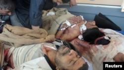 Jedan od ranjenih demonstranata u Iraku