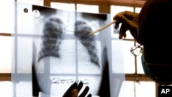 FILE - A doctor examines chest X-rays at a tuberculosis clinic in Cape Town, South Africa.