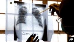 Bác sĩ kiểm tra phim chụp X-quang tại bệnh viện lao.