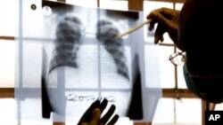 FILE - A doctor examines chest X-rays at a tuberculosis clinic in Gugulethu, Cape Town, South Africa.