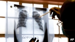FILE - A doctor examines chest X-rays at a tuberculosis clinic in Gugulethu, Cape Town, South Africa in 2007.