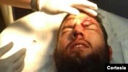 El diputado por Primero Justicia, Juan Requesens, resultó herido en la ceja izquierda cuando un grupo violento atacó la protesta que realizaban los parlamentarios en la sede de la Defensoría del Pueblo.