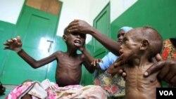 Anak-anak Somalia yang menderita kelaparan akibat bencana kekeringan, dirawat di rumah sakit Mogadishu.