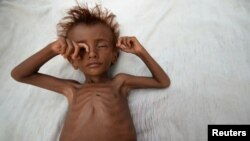 A malnourished boy lies on a bed outside his family's hut in al-Tuhaita district of the Red Sea province of Hudaydah, Yemen, Sept. 26, 2016.