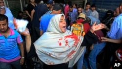 An woman with blood on her clothes screams during clashes between security forces and supporters of Egypt's ousted President Morsi in Ramses Square, in downtown Cairo, Aug. 16, 2013.