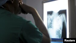FILE - A doctor examines the X-ray of a patient's heart, April 15, 2012. A new study shows vitamin D3 can significantly improve cardiac function in people with chronic heart failure.