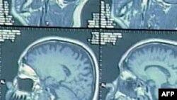 Bệnh Alzheimer và các con số