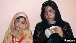 تیزاب حملے کا نشانہ بننے والی دو افغان خواتین۔ فائل فوٹو