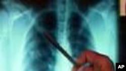 นักวิทยาศาสตร์พัฒนาวัคซีนเสริมประสิทธิภาพในการต่อต้านวัณโรค