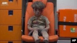 """په حلب کې ډاکټرانو ددغه هلک نوم """"عمران دنګیش"""" ښودلی او ویلي یې دي چې پنځه کاله عمر لري"""