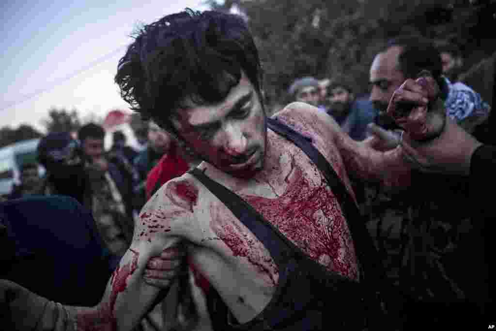 Un rebelde herido es ayudado por civiles en Aleppo.