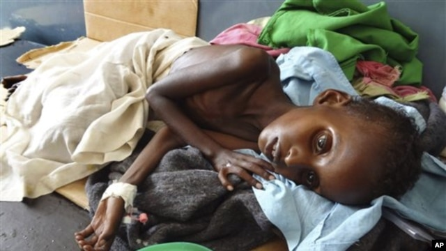 A  malnourished child from southern Somalia lies in Banadir hospital in Mogadishu, Somalia ( Aug. file photo)