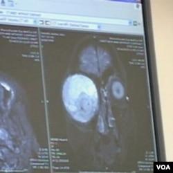Snimak na kojem se vidi veličina uklonjenog tumora