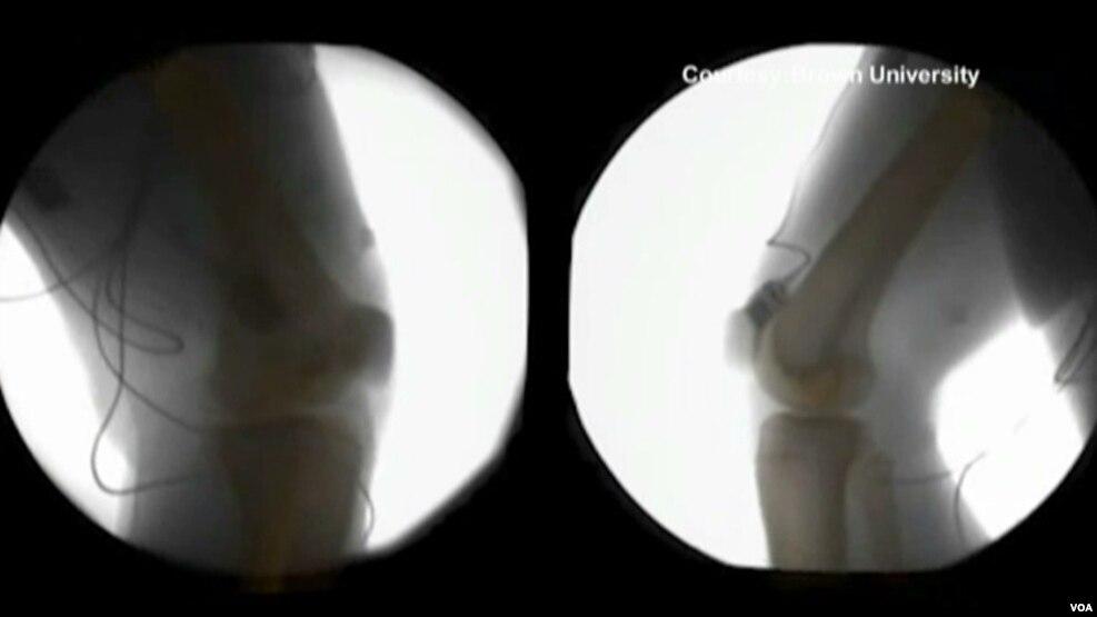 Tomografia dhe radioskopia tre dimensionale