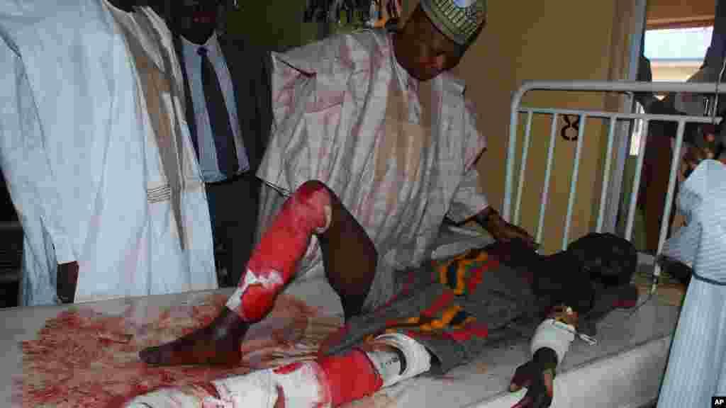 Wani da harin bom ya ritsadashi na karbar magani a asibitin kwararru na Maiduguri, Najeriya, Talata, Nuwamba 25, 2014.